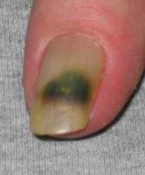 Nail problem - pseudomonas