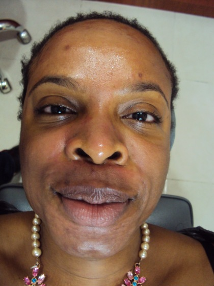 Microneedling session 1 before