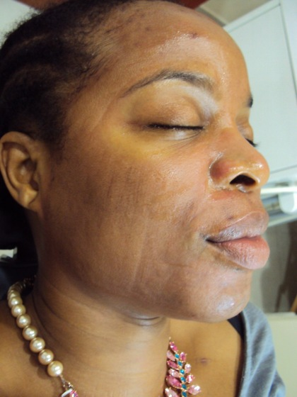 Microneedling session 1