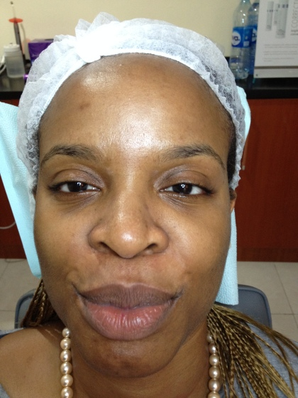 microneedling session 2 before 2