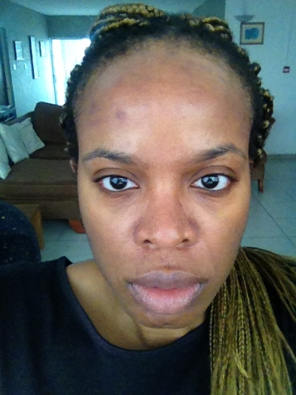 microneedling session 2 two days later